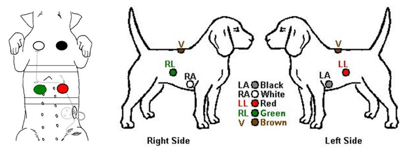 6 lead ecg placement diagram