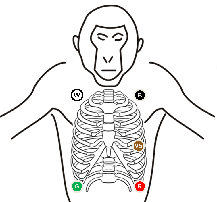 ecg electrode placement on the chest pictures to pin on