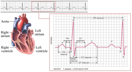 ECG waves, telemetry ecg lead placement, ecg data, ecg database, cardiac monitor lead placement, ecg signal database