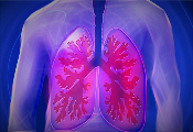 pulmonary fibrosis, lung, lung fibrosis, fibrosis