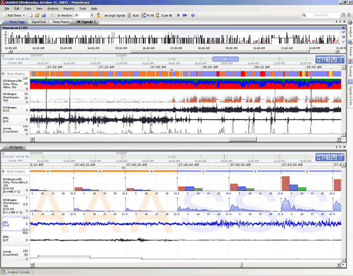 Neuroscore, Sleep Scoring, Rodent Sleep Scoring, cns software