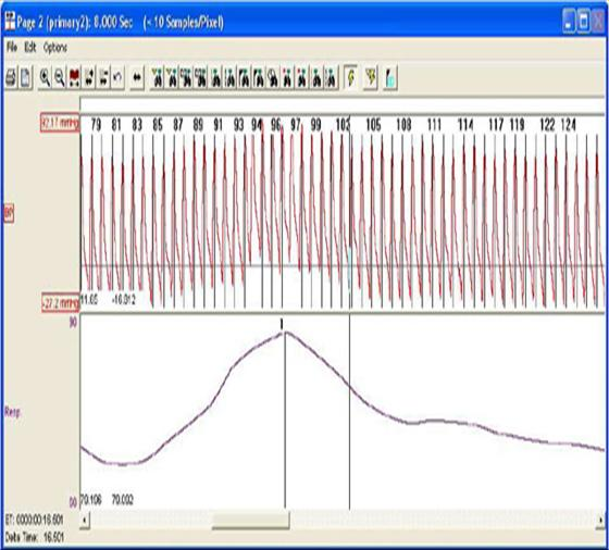 blood pressure respiration software