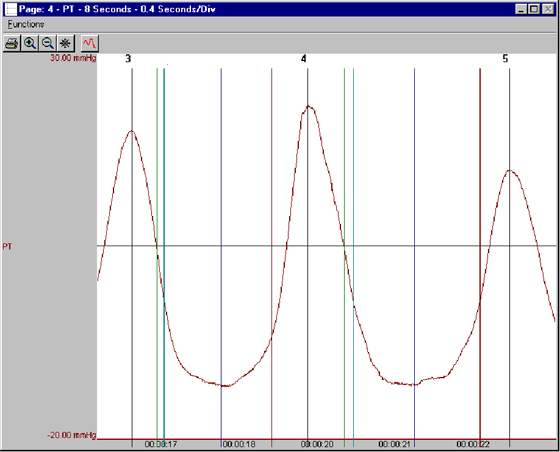 software module, ecg software, blood pressure analysis